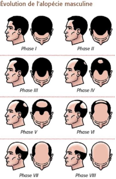 Quelle coupe de cheveux homme calvitie